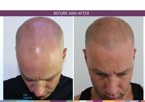 new hair replacement technology 2014 color me today debuts new cosmetic hair loss treatment in us