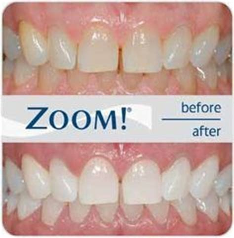 9 best images about Zoom Whitening on Pinterest   We