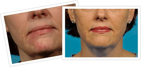 michigan spider veins treatment skin and vein center
