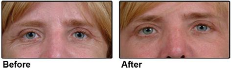 laser wrinkle removal before and after wrinkle treatment nyc sun damage treatment new york city