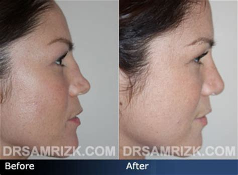 nyc rhinoplasty surgeon dr sam rizk nose surgery and