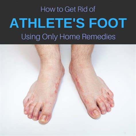 13 home remedies for athlete s foot cure get rid of it