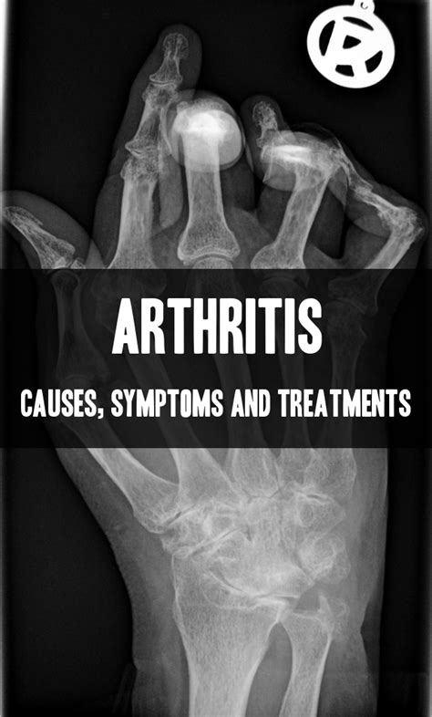 arthritis remedy arthritis its causes symptoms and treatments available