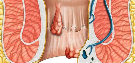 causa emorroidi interne emorroidi cause rimedi consulto ano sintomi