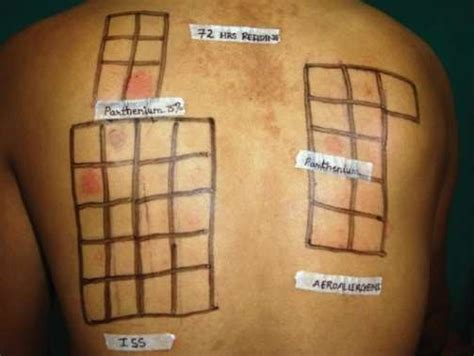 pach test patch testing for contact dermatitis health patient