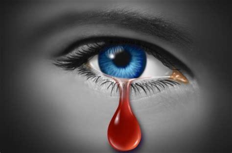 imagenes de ojos que lloran sangre misterio en tenneesse joven llora l 225 grimas de sangre