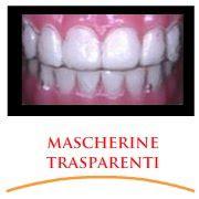 apparecchio denti interno costi ortodonzia specialistica dentista cassino studio di