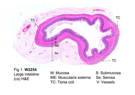 colon sections block10 2 fig 1 w2254 large intestine cs h e