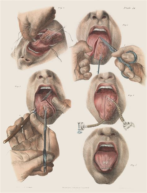 imagenes medicas perturbadoras morbidly beautiful pictures reveal the horror of surgery
