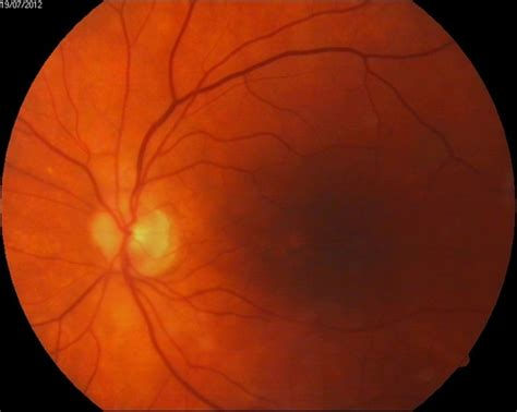 macular pattern dystrophy the retina reference pattern macular dystrophy retina image bank