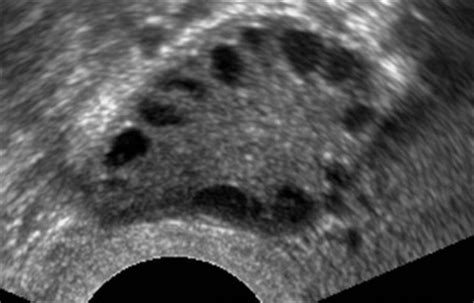 schwanger ab wann herzschlag kiwu centrum wie l 228 uft das ab unsere langzeit 220 benden