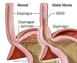 diagram of hiatal hernia 9 reasons for sharp right breast