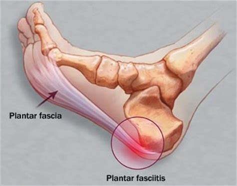 Planters Fasciitis Symptoms by Heel Learn More And Don T Ignore By Dr Kevin Yip