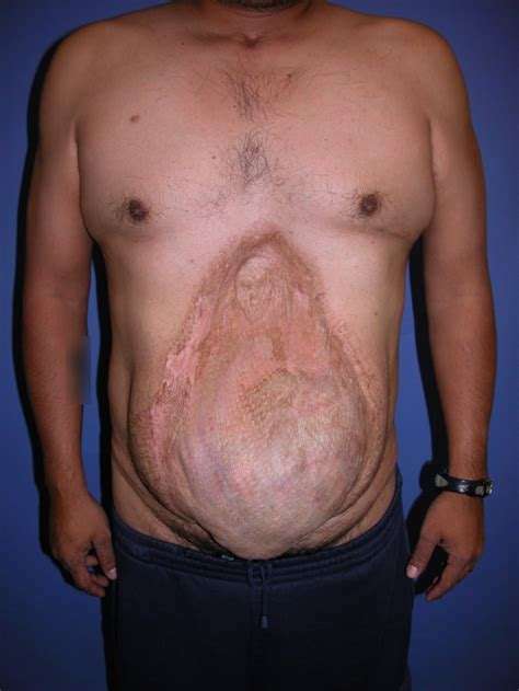Abdominal Hernia Surgery Pictures abdominal surgery abdominal surgery hernia repair