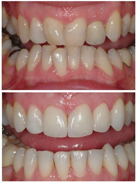 orthodontic dental treatments orthodontics advanced