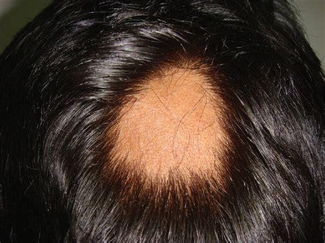 alopecia hairstyles naomi s alopecia short hairstyle 2013