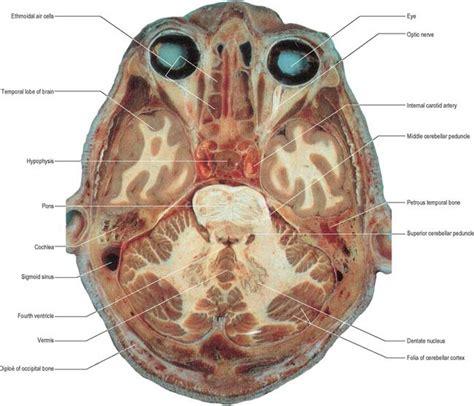 horizontal section of brain cerebellum basicmedical key