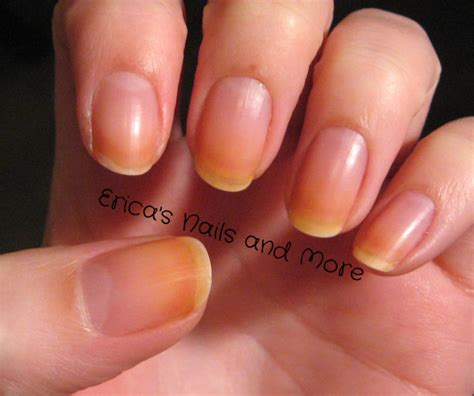 yellow nail beds yellow nails nail oil pure nail oil challenger erica