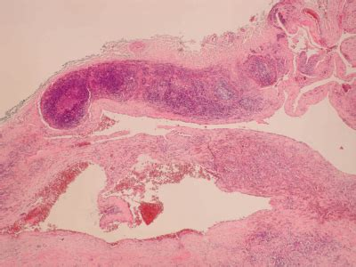 Ultimobranchial Pathology Outlines by Pathology Outlines Branchial Pouch Cleft Anomalies
