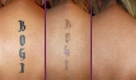 yag laser tattoo removal before and after laser removal enlighten spa