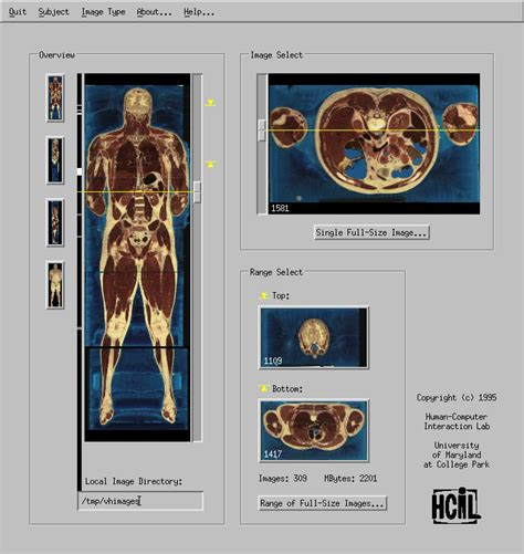 coronal section of body user controlled overviews of an image library the visible