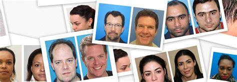 prescreened hair transplant physicians hair transplant be careful and learn from patients first