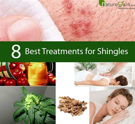 Top Treatment Does Anyone Of Any Treatment For Shingles