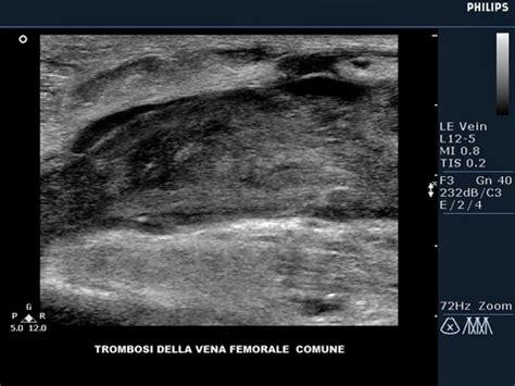 ecodoppler vasi spermatici ecocolordoppler centro salute poliambulatori di piantedo