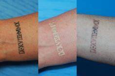 tattoo removal newtown bye bye removal before and after