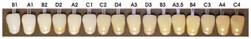 tooth color chart denture teeth shade guide grosir baju surabaya