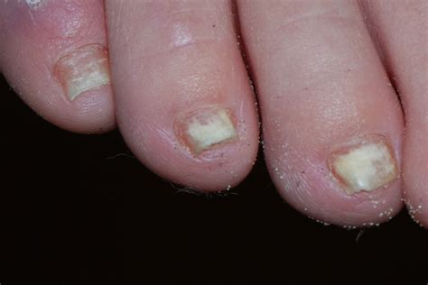 nail infection fungal nail infections onychomycosis pictures in high resolution and clinical