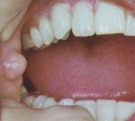 fibroma white raised spot on inner lip oral pathology fibroma