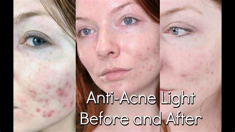 led light therapy before and after pictures bluemd light therapy review trophy skin before after