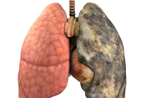 How To Detox Tobacco Damage by All Drink That Clears Your Lungs Of Mucus And
