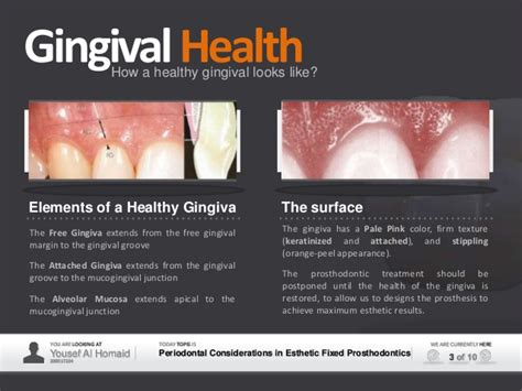 surgical esthetic correction for gingival pigmentation periodontal esthetic considerations in fixed prosthodontics