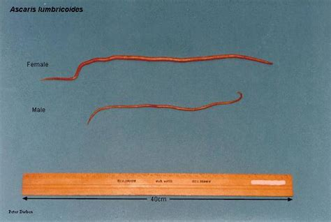 Worms In Humans Stool Pictures by Parasites Images Ascaris Lumbricoides Tapeworm Whipworm