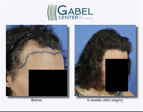 can you color hair after brain surgery after surgery hair cuts unique hair loss after surgery