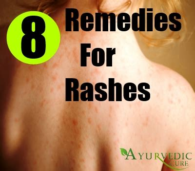 simple home remedies for rashes treatments and