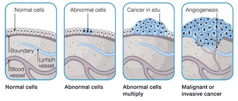 cancer diagram factsram how cancer spreads to other part of the