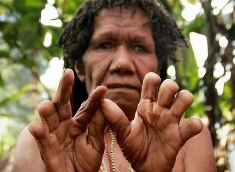 potong jari tradisi berbela sungkawa  papua