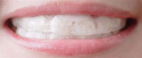 teeth whitening home remedies puresmile australia