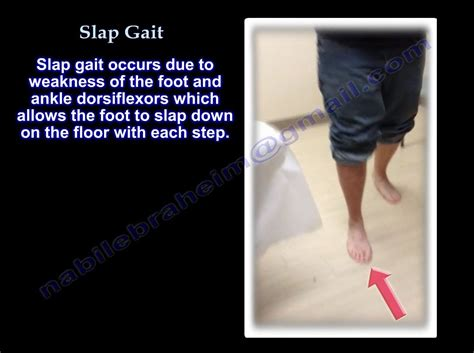 gait pattern youtube slap gait steppage gait foot drop everything you