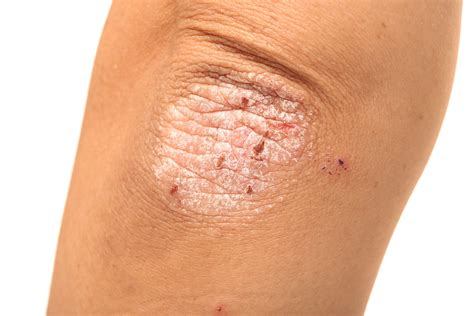 scalp psoriasis the psoriasis and psoriatic arthritis 3 things you should know about treatment for psoriatic