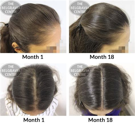 female pattern hair loss emedicine hair growth success staff are extremely professional