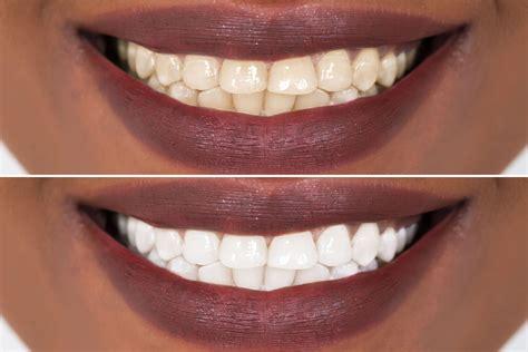 teeth whitening kit smile sciences