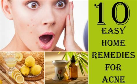 10 home remedies for acne remedies to get rid of