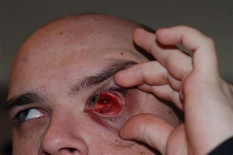 eye injury redbaron s horrible eye injury might be gross pics later christian guitar forum