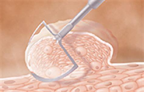 wart cross section treating genital warts