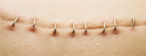 how to take care of stitches after c section wound stapled stitched or glued here s the type of scar