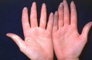 Renaults Disease Raynaud S Phenomenon Cedars Sinai